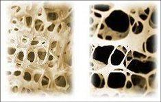 Osteoporose1A 1